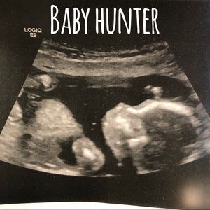 Meet Baby Hunter